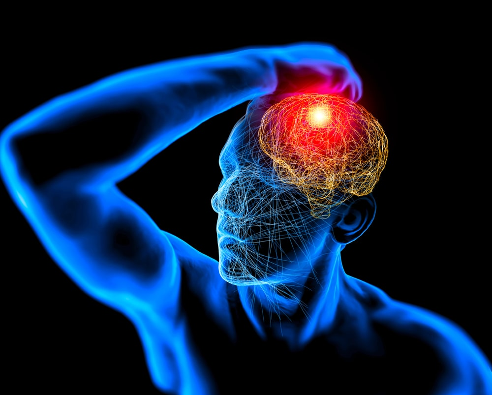 malattie degenerative del cervello